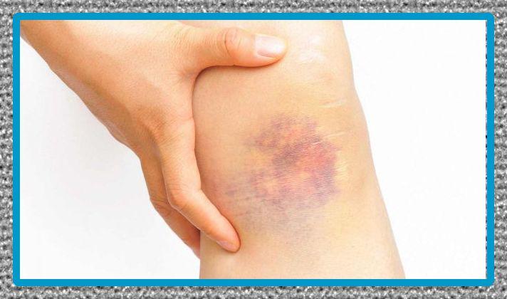 medicina para el dolor por golpes y desinflamar