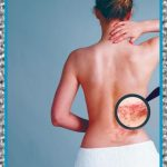 Medicamentos Para el Dolor Causado por el Herpes Zoster