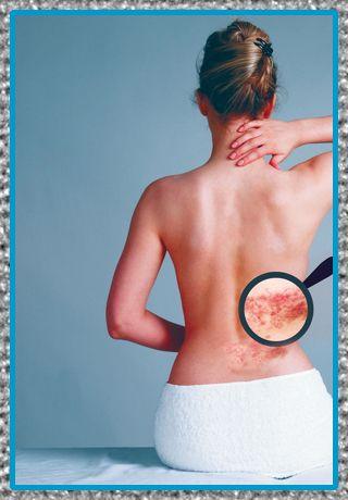 medicina para el dolor por el herpes zoster