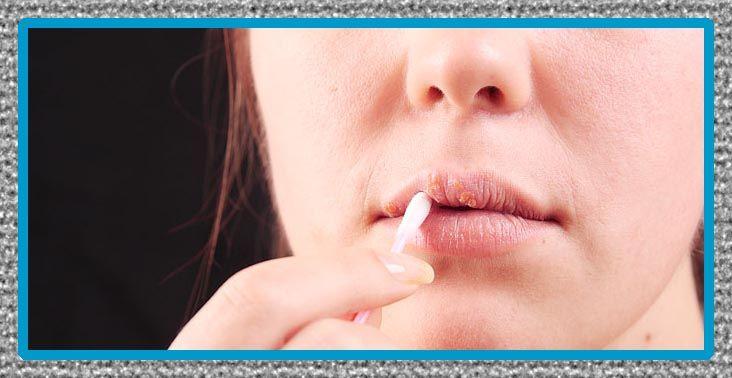 medicina para herpes labial o genital