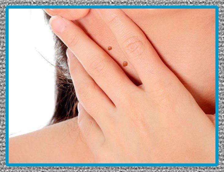 remedios caseros para las verrugas en la cara y cuello