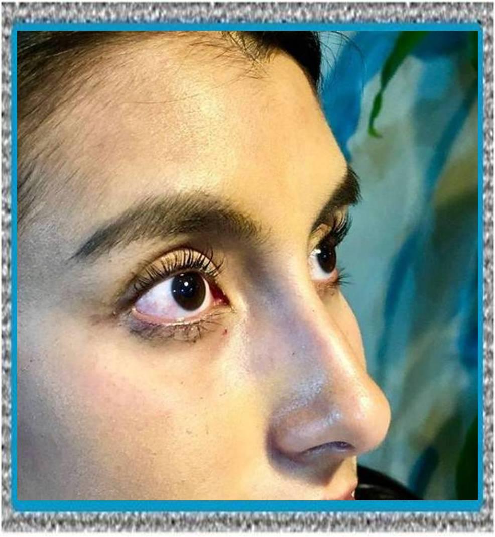 terramicina oftalmica